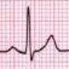 Core EKG, Name That Heart Rhythm – Part 1